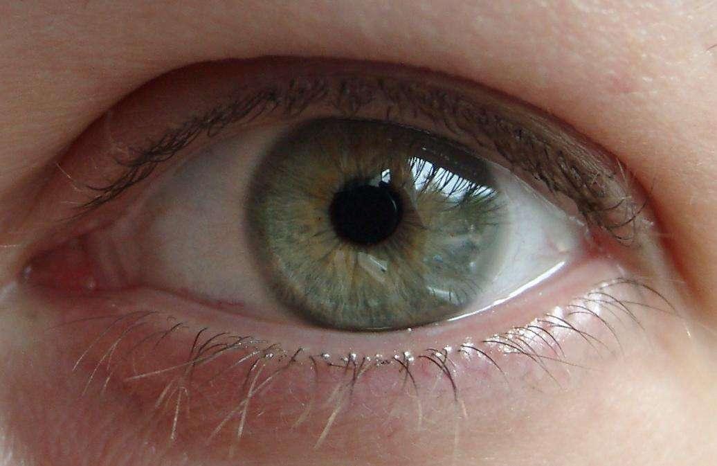 Die Kreise unter den Augen torrent